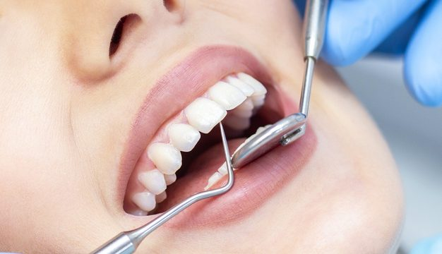 Dental Implants Sarnia
