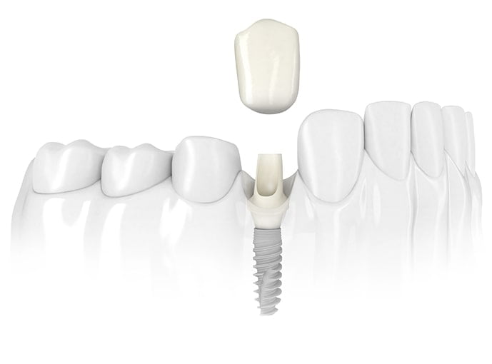 Teeth Implants