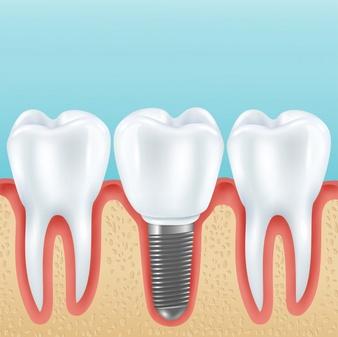 Dental Implant Sarnia