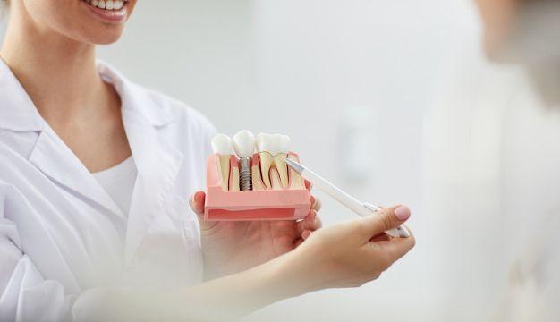 Dental Implants Sarnia