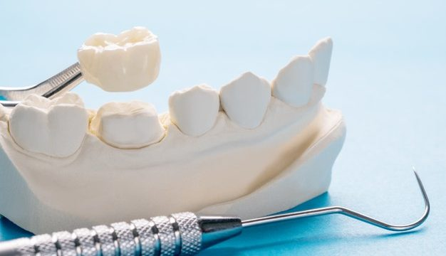 Dental Crowns Sarnia