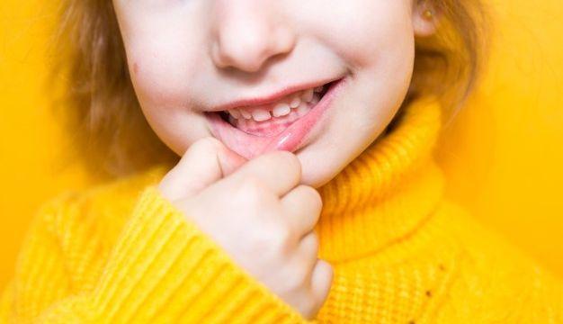 Teeth Whitening Sarnia